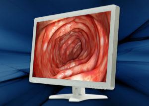 "Ecran médical 27"" BriteMED® - Vue de profile"