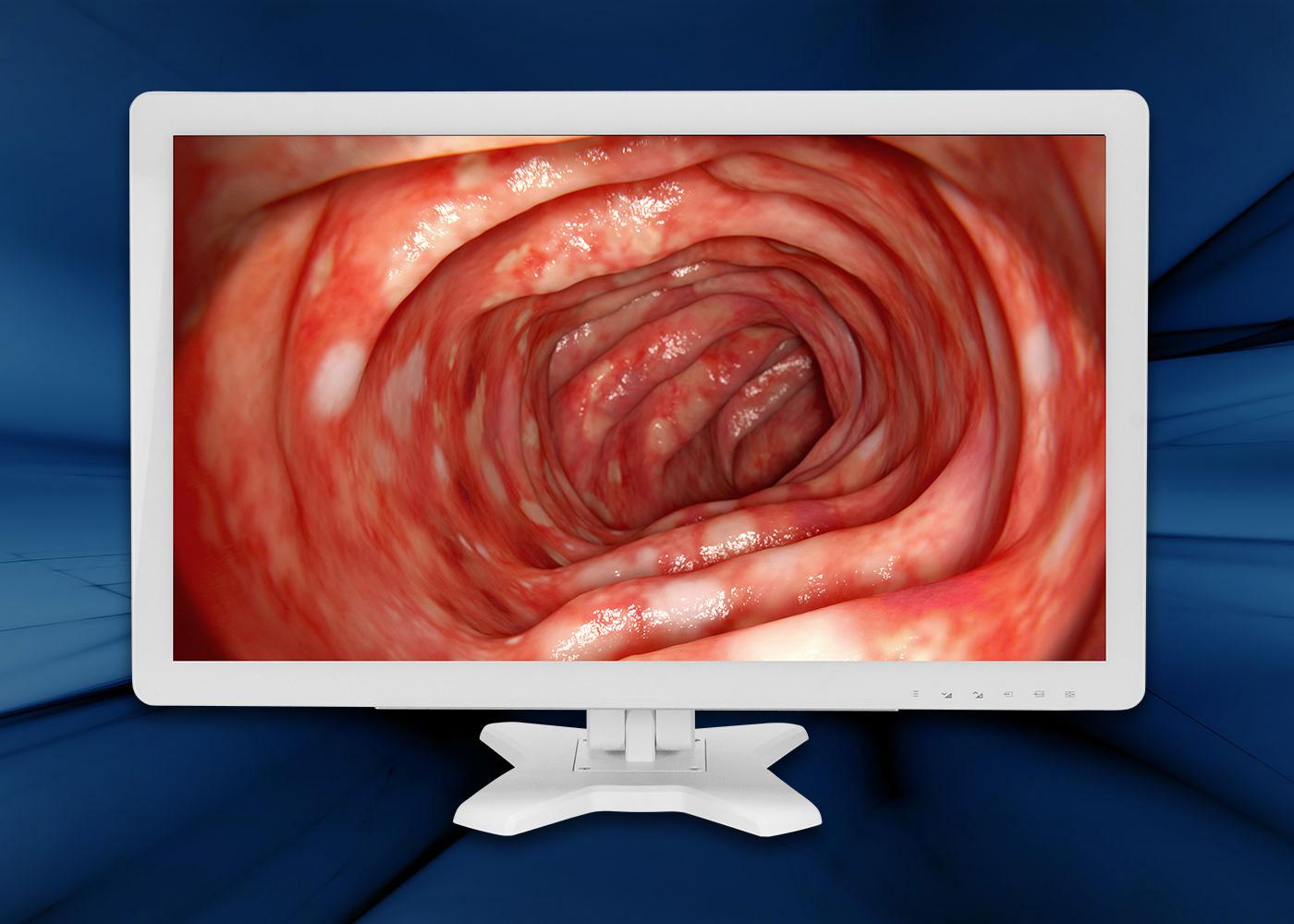 Ecran médical 27″ BriteMED® – Vue de face